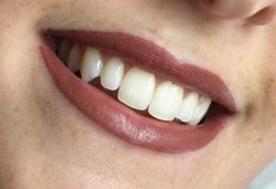 lip-permanent-makeup